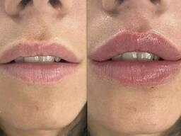 Увеличение губ, контурная пластика лица, Мезотерапия